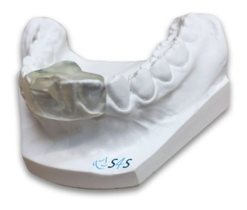 The Sleep Clench Inhibitor - SCi - an example of an occlusal splint.