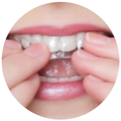 Clear aligners.png