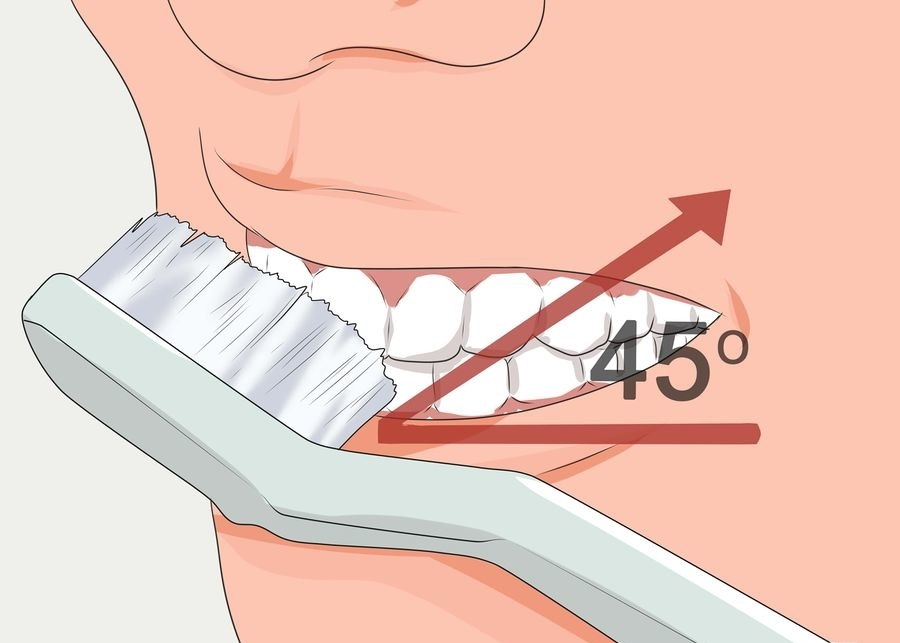 900px-Avoid-Tooth-Decay-Step-4-Version-2.jpg