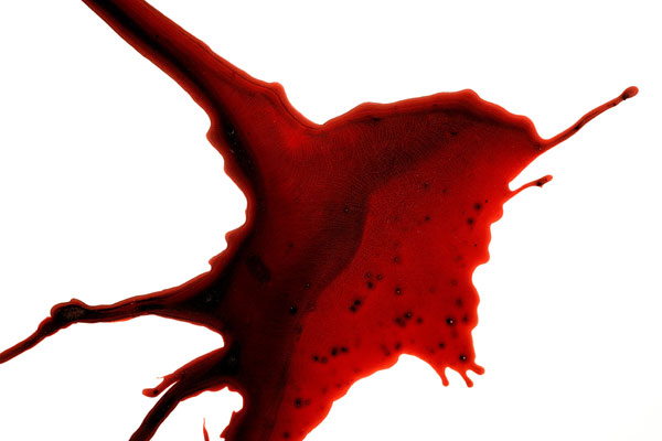 """FK11"" (detail)<br>Blood, resin, preserved on plexiglass<br>48 x 48 x 3 inches"
