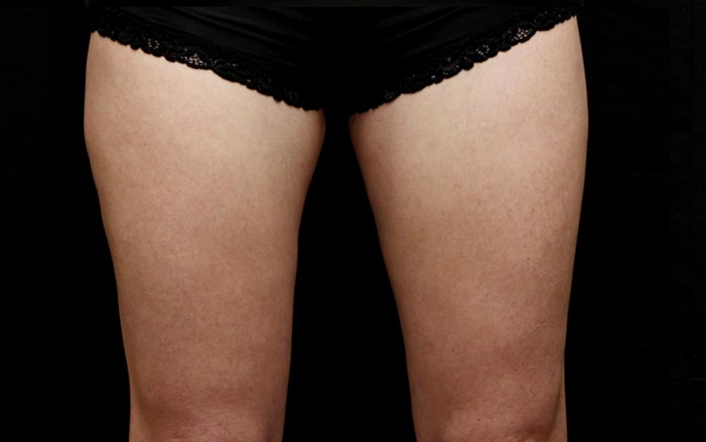 Women-Thighs