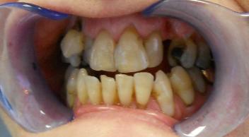 Patient 9 Pre-Operation