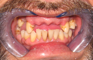Patient 12 Pre-Operation