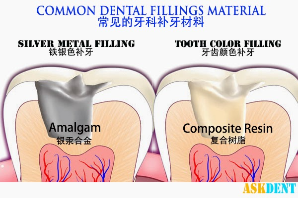 The two types of fillings which are commonly used, White filling (composite resin) and Silver Metal filling  (amalgam).