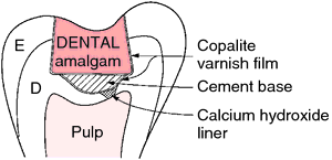 In deep cavity case, dentist will put a layer of lining and sublining to protect the pulp underneath, and promote healing