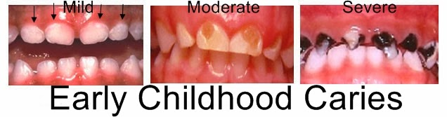 Stages of Early Childhood Caries