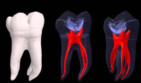 The 3 D looks of Dental pulp, and root canals