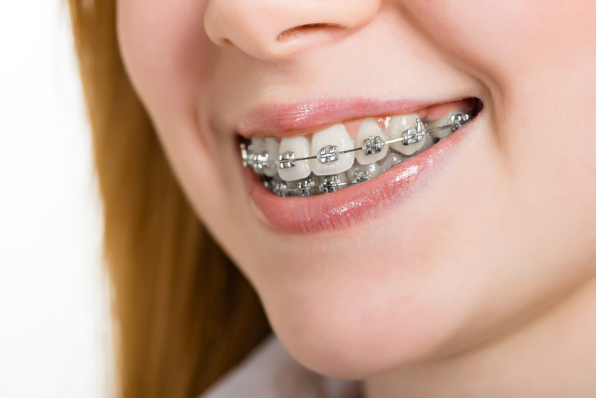 Orthodontic (Braces)