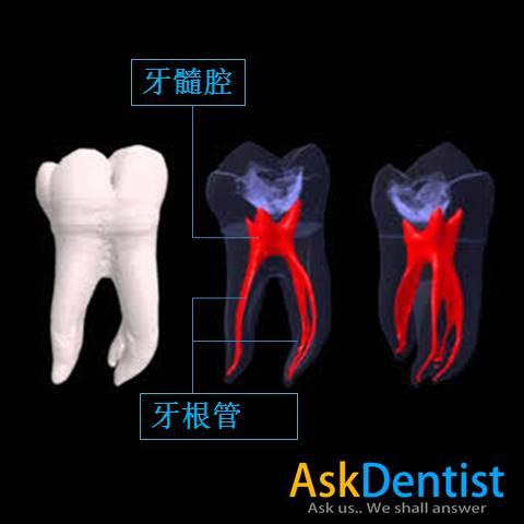 3D呈现的牙齿牙髓腔及牙根管