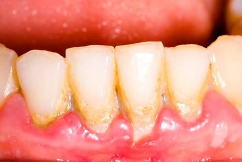 Plak gigi di sekitar gigi yang mengakibatkan gigi rosak.