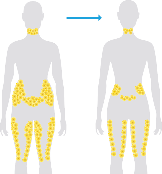 coolsculpting-fat-reduction.png