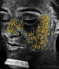 visia UV spots