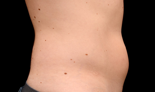 Coolsculpting Results for Men's Abdomen, Before