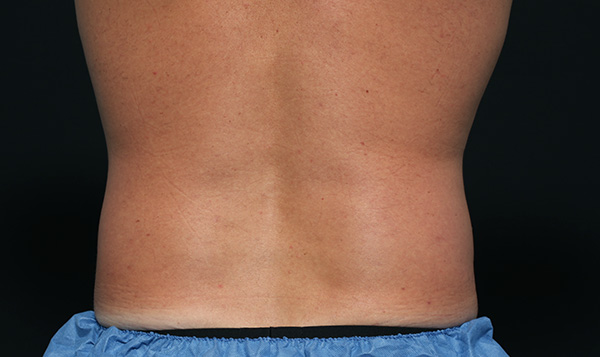 CoolSculpting results for men's side and flanks, After