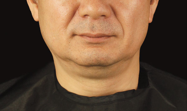 CoolSculpting Results for Men's chin, Before