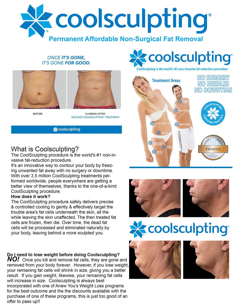 coolsculpting anew you flyer.JPG