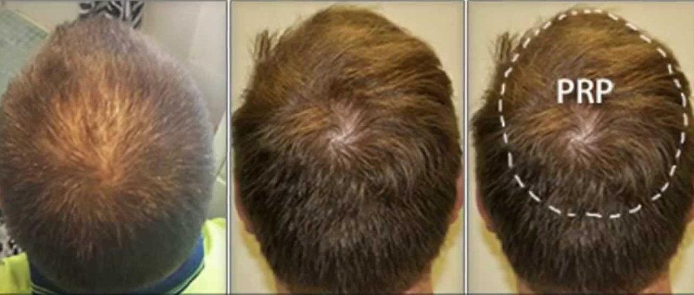 prp scalp 2.jpg