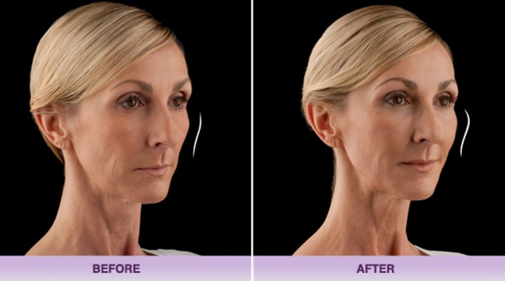 voluma-filler-jawline-allergan-1024x570.jpg