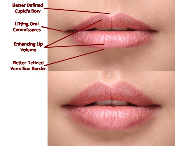 volbella-lips.png