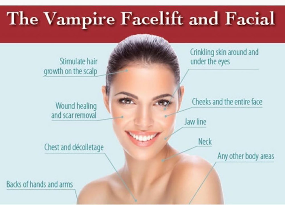 2. Vampire Combo - Purchase PRP Vampire Facial plus Vampire Facelift and get a FREEsyringe of cheek or lip fillerRetail $3100Treat to Complete Special $2000