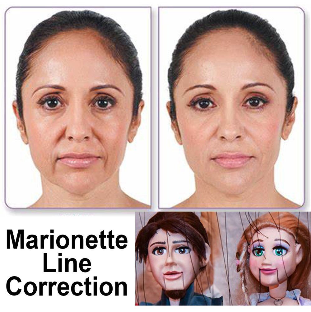 3. Marionette Line Combo - Turn that Frown Upside Down!What is the best way to get rid of your perpetual sad face look? It's a combination of treatments and we are here to help!Marionette Line April Combo Special - PDO Threads, Juviderm Filler, and BotoxRetail $2352Treat to Complete Special $1500