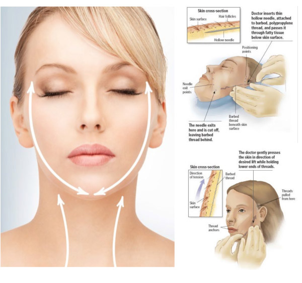 4. Nonsurgical Necklift plus Facelift - PDO Full Facelift plus ThermiTight Internal Radiofrequency Neck/Double Chin LiftRetail $6200Treat to Complete Special $3,500