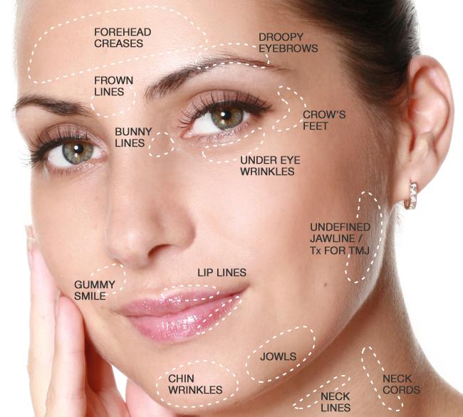 6. Botox Bonus - Buy 50 units Botox plus 1 Thermismooth Skin Tightening Session, get a second Thermismooth PLUS 1 Thermiva Vaginal Rejuvenation FREERetail $2950Treat to Complete Special $1500