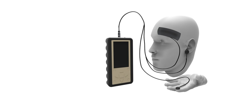 Intracranial Pressure and Assessment Screening System (IPASS)