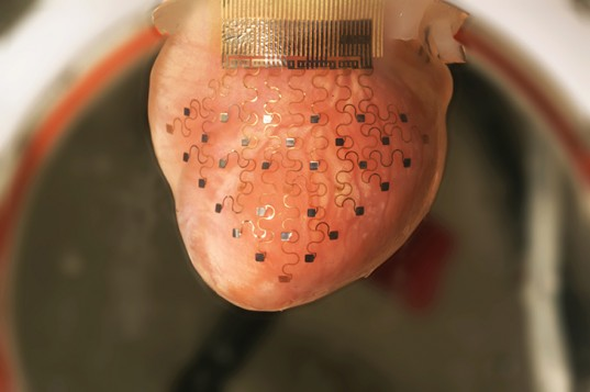 This photo shows the new cardiac device― a thin, elastic membrane― fitted over a rabbit's heart. The membrane is imprinted with a network of electrodes that can monitor cardiac function and deliver an electrical impulse to correct an erratic heartbeat. (Image: University of Illinois and Washington University)