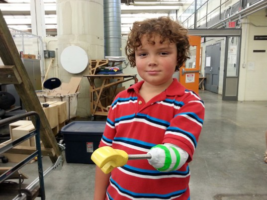 Aidan's New Arm, via  Superhero Cyborgs