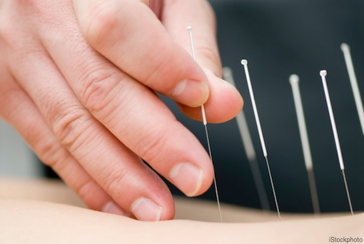 Acupuncture needles are the width of two human hairs.