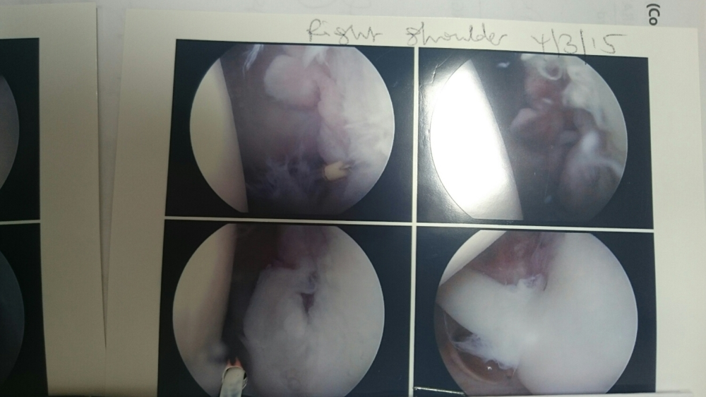 After Surgery Photo