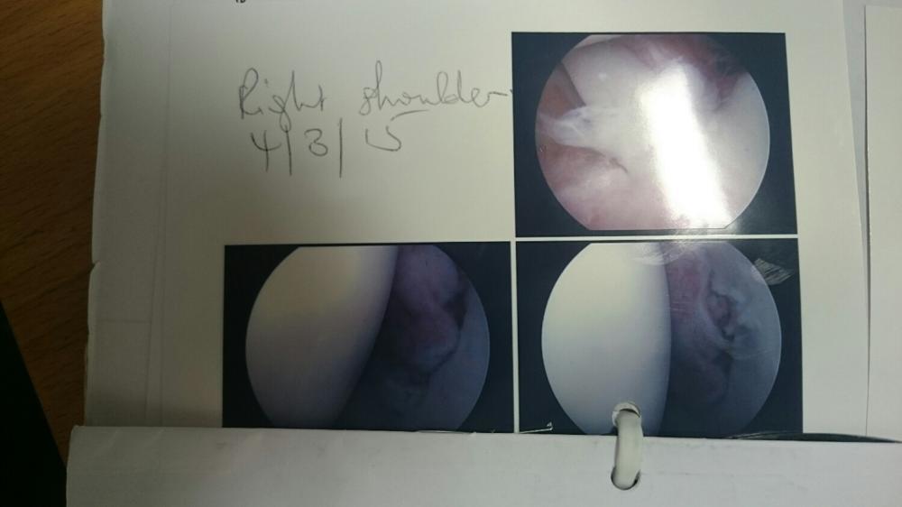 Shoulder Surgery Pictures
