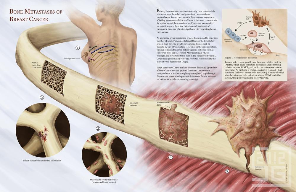 Bone Metastases of Breast Cancer