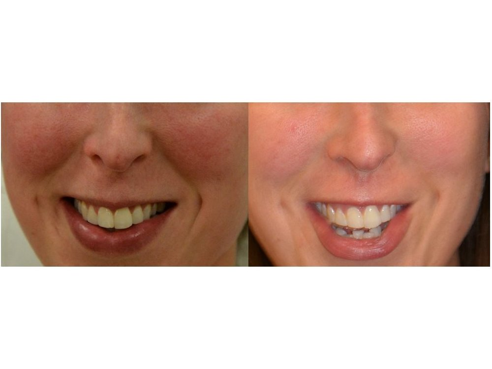 Rosacea pre and post laser treatment