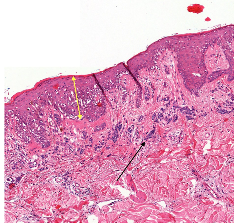 Skin biopsy lab results for melanoma, showing melanoma in situ at the yellow arrow overlying a normal mole at the black arrow
