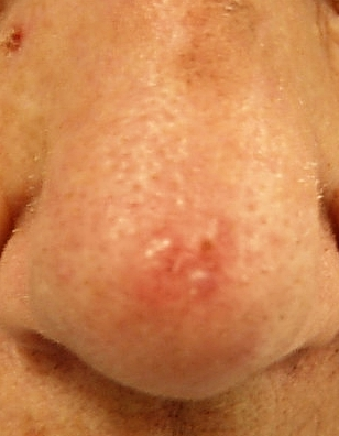 Basal cell carcinoma: learn more