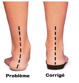 orthotics-reduce-foot-pain-2.jpg