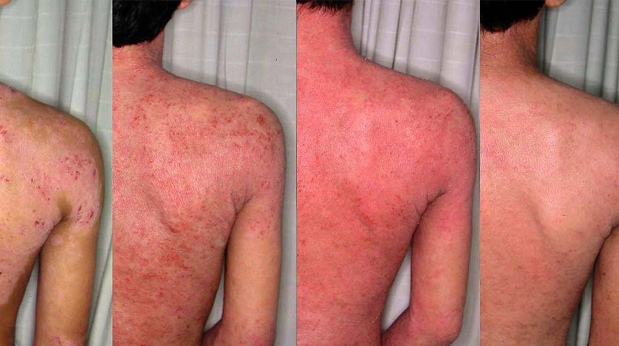 Bleach Bath AtopicDermatitis.jpg