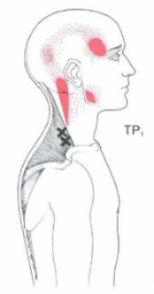 Upper Trapezius trigger points referring pain into the head. Courtesy of: http://www.triggerpoints.net