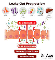 http://draxe.com/4-steps-to-heal-leaky-gut-and-autoimmune-disease/