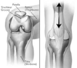 Courtesy: http://orthoinfo.aaos.org/