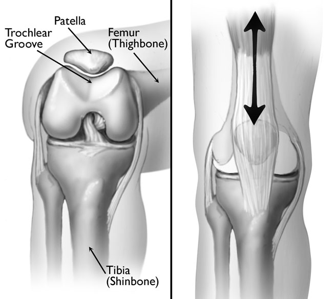 Patellofemoral Pain Syndrome Runners Knee Embody