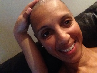 Kaylene embracing her temporary hair loss post Chemo.