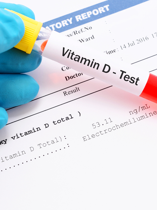 vitamin_test.png