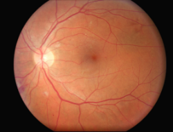 Fundus camera image