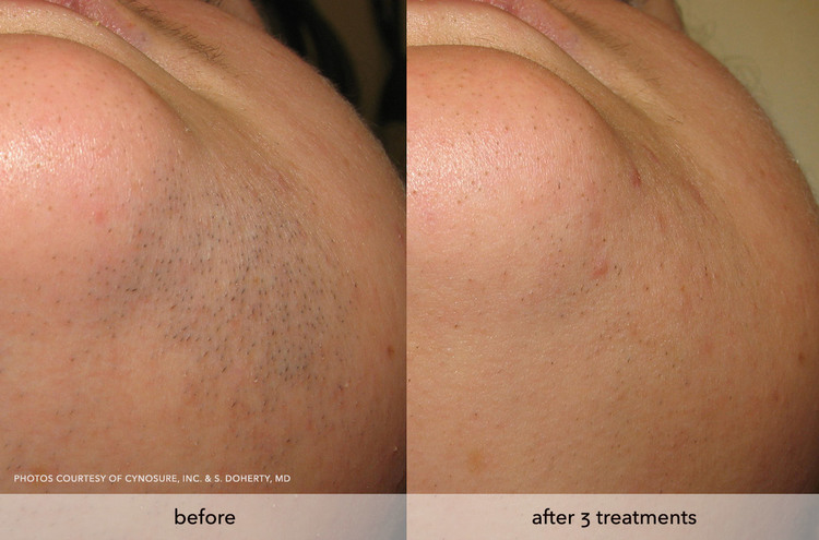 Laser hair removal dermatology associates of northwest indiana about laser hair removal solutioingenieria Choice Image