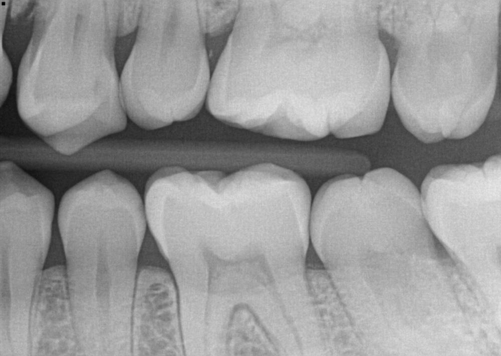 Maggie - X-ray.jpg
