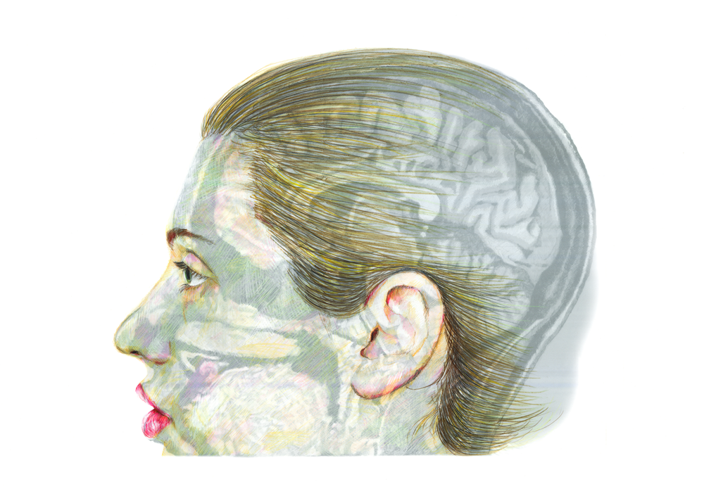 ResearchHead410_Sideview.png