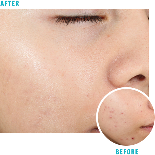 Before After Skin Care